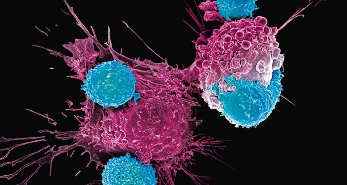 La biotech française Mnemo lève 75 millions d'euros pour soigner le cancer