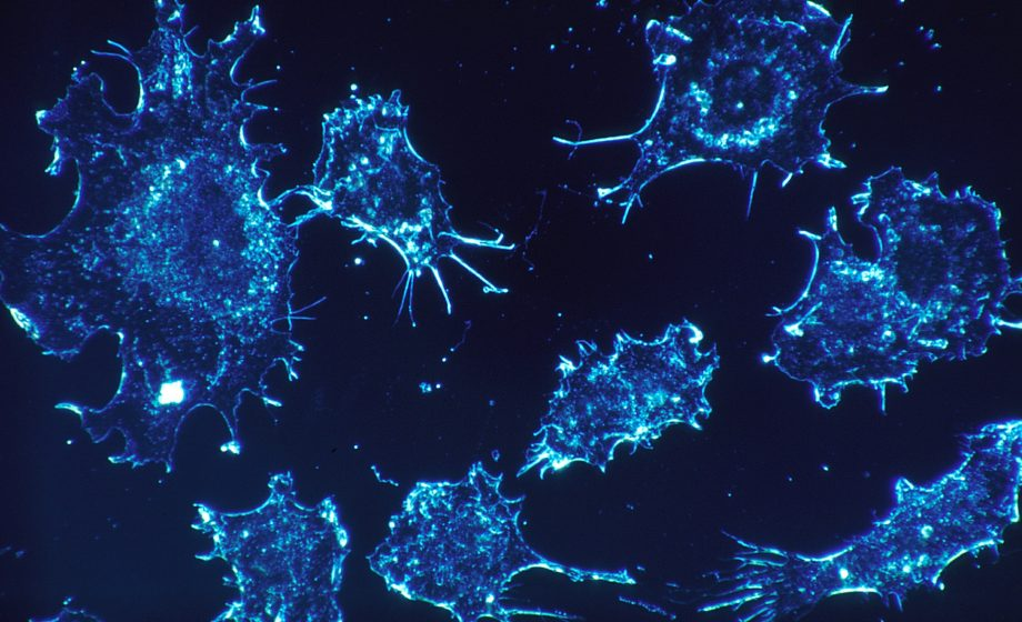 Belgian healthtech firm OncoDNA raises €19m for precision cancer treatments and analysis