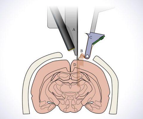 Neuralink: soigner (et améliorer) le cerveau grâce à des puces neuronales